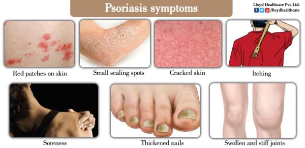 Psoriasis-symptoms